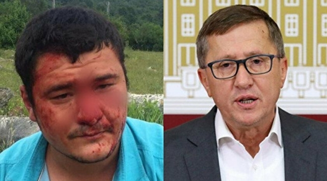 Elemanları gazeteciye saldırmıştı... Türkkan açıklama yaptı!